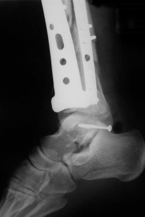 Fracture of the Posterior Process of Talus with Pilon