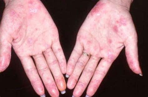 11 symptoms of lupus lupus symptoms and signs lupus information and lupus cure lupus