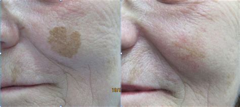nclp client example images northern cosmetic laser