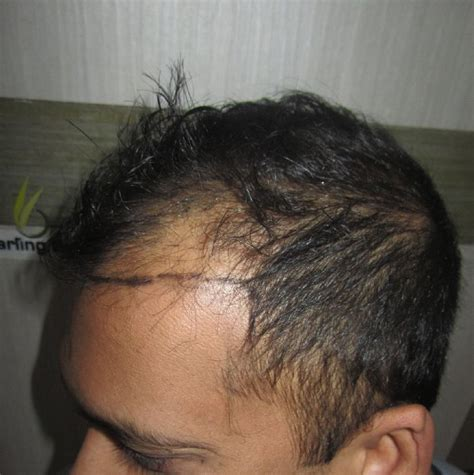 Type 2 Hair Loss by Image