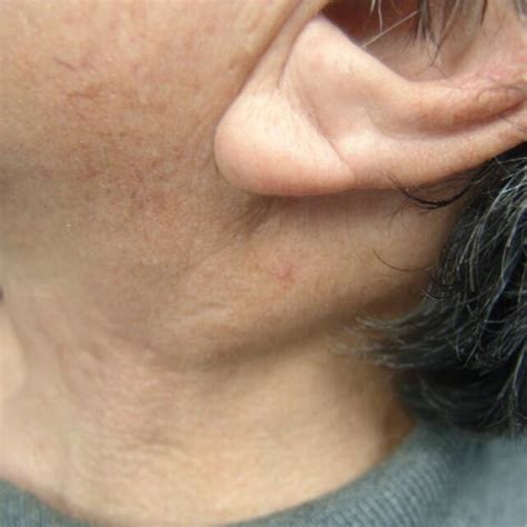 Free Find Picture And Imaging Of Sternocleidomastoid Lipoma Otolaryngology Houston