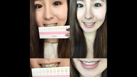 smile teeth whitening test review day final