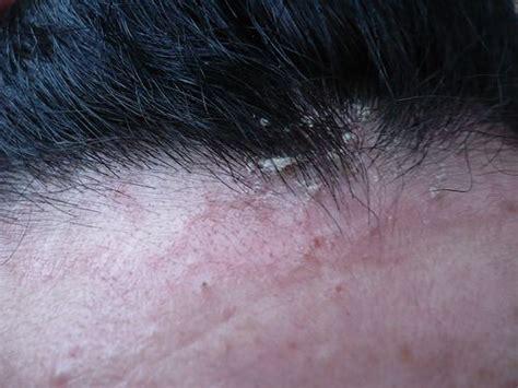 dermatite seborroica testa seborrea la dermatite seborroica