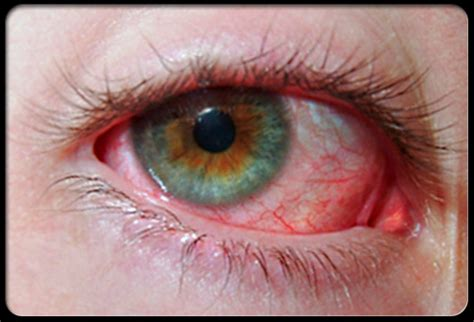 a substance that causes sensitivity to light mata merah conjunctivitis sitik s