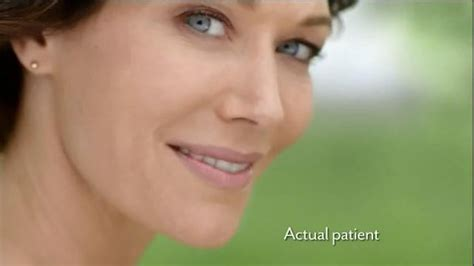 juvederm actress in commercial juvederm actress in commercial juvederm commercial model