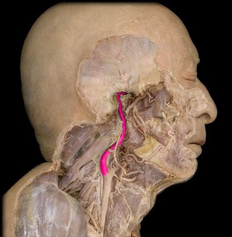 carotide interna best 25 carotid artery ideas on