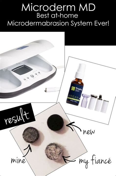 microderm md best at home microdermabrasion system