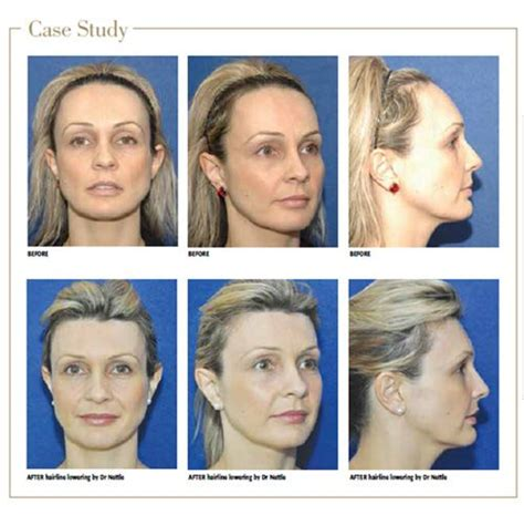 different hairlines for women 1000 images about foreheads and hairlines on pinterest