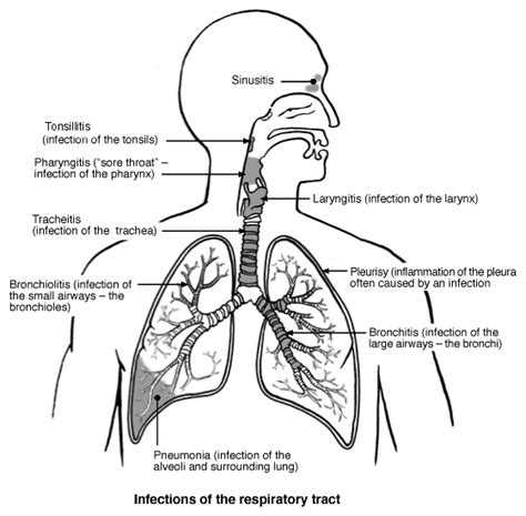 the respiratory system diagram common cold and other respiratory tract infections