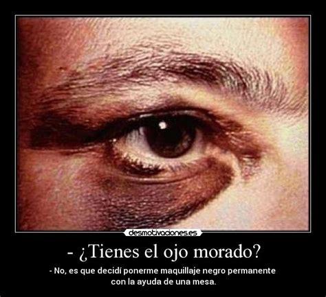 imagenes ojos morados tienes el ojo morado desmotivaciones