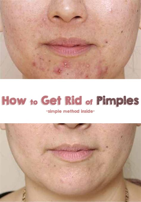 How To Get Rid Of by How To Get Rid Of Pimples Nbeautytips