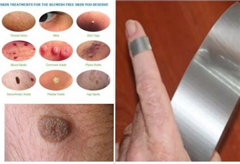 Planters Wart And Duct by Human Papillomavirus Pictures Posters News And