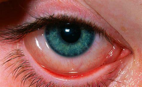 eye allergies image gallery eye allergies