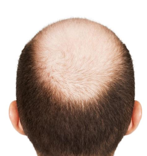 pattern of hair loss say good bye to male pattern baldness steroidology