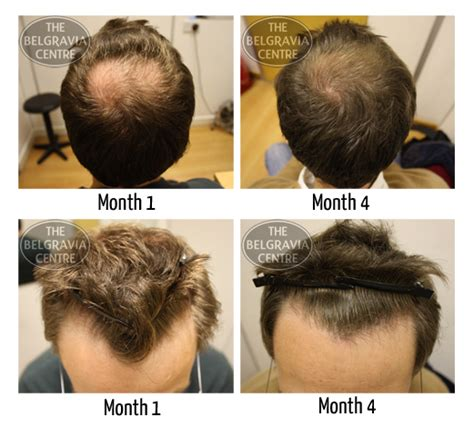 female pattern hair loss minoxidil propecia minoxidil regrowth how to take dapoxetine 60
