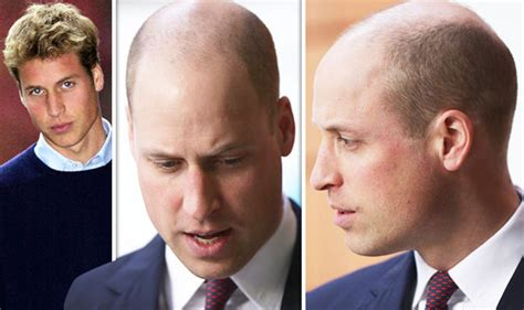 Pre Bald Brit Liar Liar Hair On by Prince William New Hair In Pictures Bald Duke Sports New