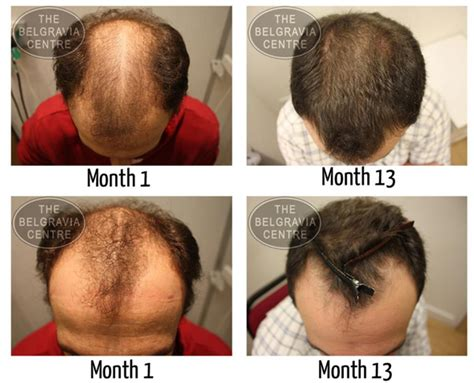Hair Transplant Types The Best One by Hair Transplant Information
