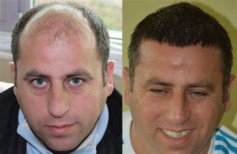 hair transplant before and after hair transplant before and after images 8384 grafts