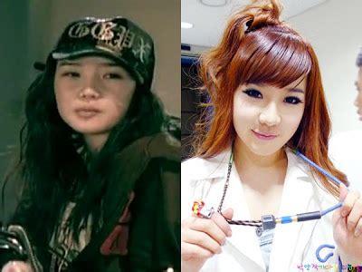 artis k pop yang pernah membuat pembedahan plastik di dagu lebih menawan wajah artis korea setelah melakukan