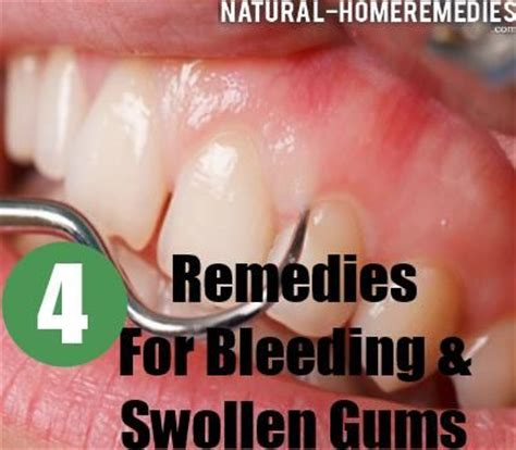 home and herbal remedies for bleeding and swollen gums