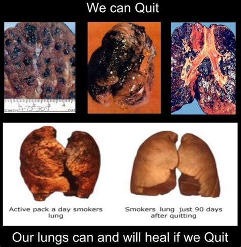 contact smoking cessation quit smoking  easy