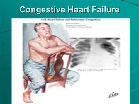 congestive failure congestive failure study ppt