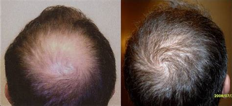 hair restoration hair transplant neograft orlando welcome neograft 169 to finger and associates new youth