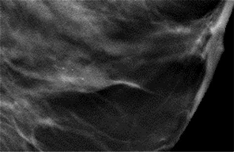 pattern classification ultrasound tubular adenoma of the breast a case report