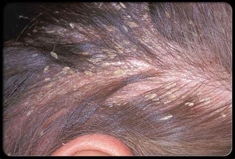 pali culle pellicule et perte de cheveux m 233 dical sant 233