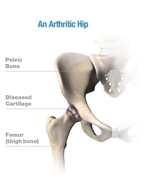 find a physician superpath hip replacement total hip replacement stryker
