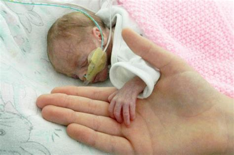 born prematurely meaning premature baby girl born weighing less than a bunch of