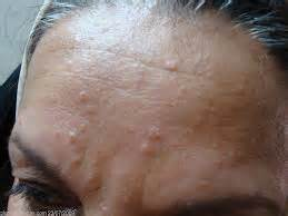 sebaceous hyperplasia treatment at home dr philippa mccaffery cosmetic physician