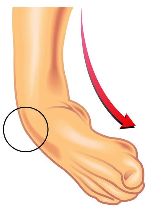 dolore alla caviglia interna tendine di achille stretto dopo distorsione alla caviglia