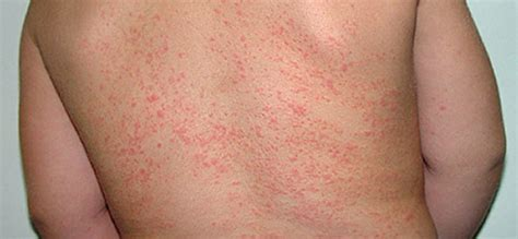 Mercury Detox Symptoms Rash by Image Gallery Heat Rash After Sauna