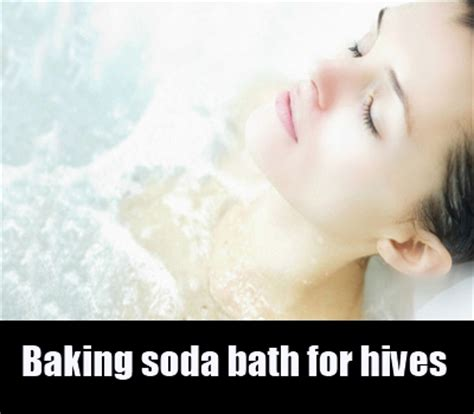baking soda bathtub 7 natural cure for hives how to cure hives naturally search herbal home remedy