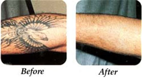 tattoo removal washington dc lourdes hospital tattoo removal binghamton ny