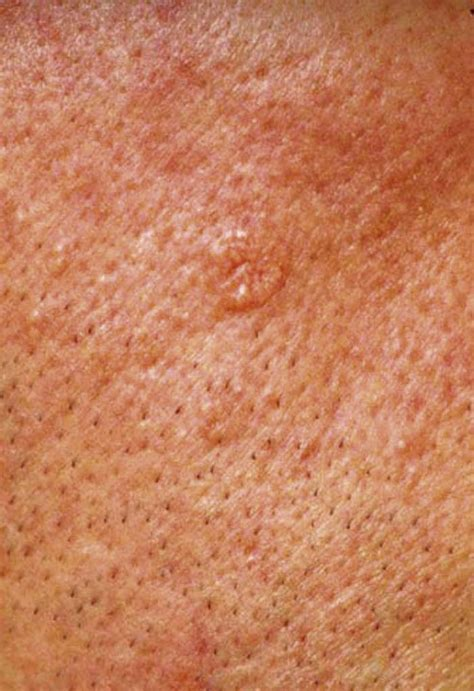 skin growth image gallery normal skin growths