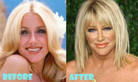 how hard is it to do suzanne somers hairstyle suzanne somers plastic surgery before and after lovely