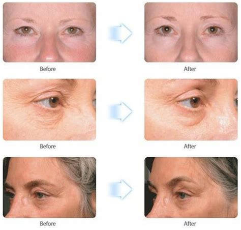what are jowls causes prevention how to get rid of them how to get rid of sagging jowls hairstylegalleries com