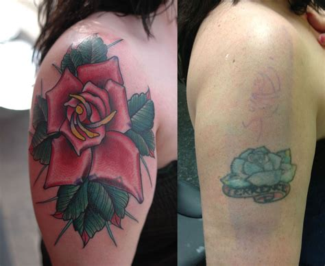 tattoo removal in minnesota cover up northeast laser removal and