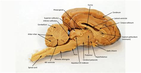 sagittal section of brain labeled sheep brain human anatomy web site