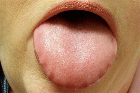 swollen red bumps on side of tounge swollen tongue symptoms causes treatment pictures