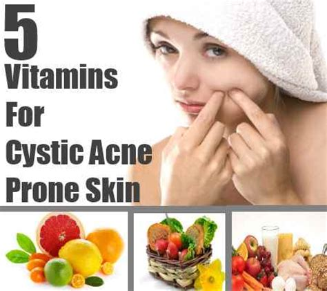 Detox Diet For Acne Prone Skin by Best Supplement Bundles 02 Best Supplements For