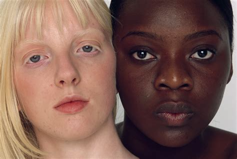 what causes different skin colors skin may evolved to protect against skin cancer