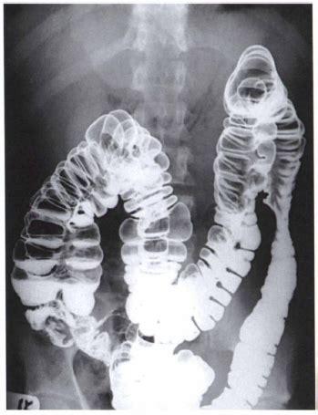Detox Mri Contrast by Bowel Prepations Radiology Department Radtechonduty