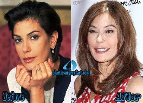 and decinque before teri hatcher plastic surgery before and after