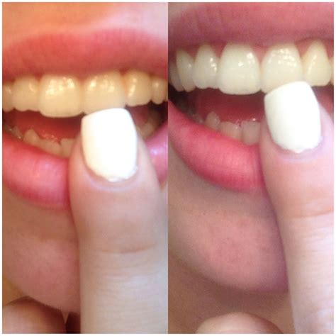 teeth whitening  results   charco caps