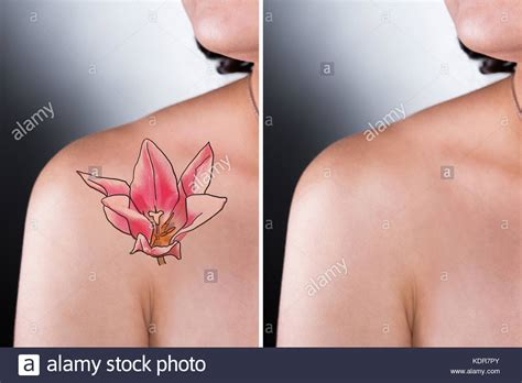 tattoo removal stock person showing before and after laser removal