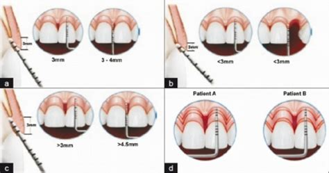 sextant meaning in dentistry a normal crest showing biologic width on labial and i