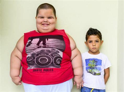 obesidad imagenes fuertes alerta importancia de la vitamina k en los ni 241 os obesos
